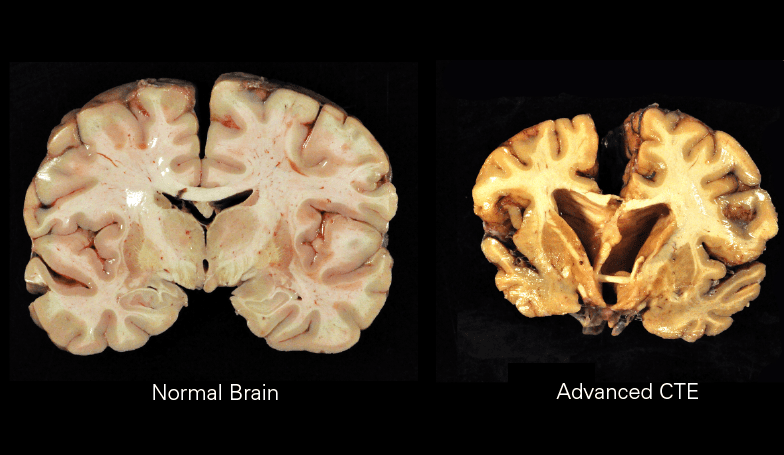 Image of a normal brain and a brain with advanced chronic traumatic encephalopathy.
